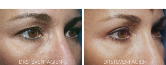 blepharoplasty-before-after-1