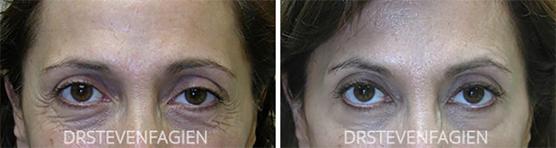 botox-before-after-female-under-eyes