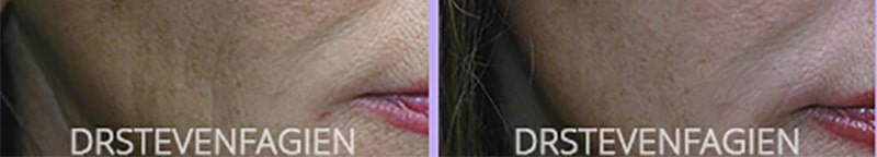 female-before-after-juvederm-filler-cheek-wrinkles