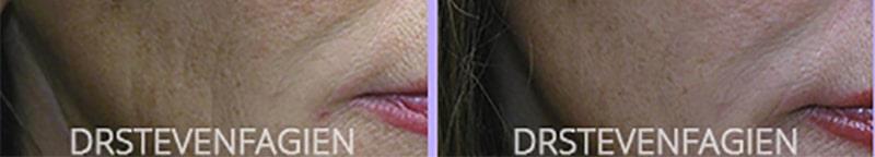 female-before-after-juvederm-filler-cheek-wrinkles