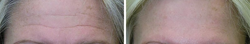 female-before-after-juvederm-fillers-forehead-wrinkles