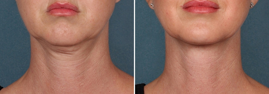 female-before-after-kybella-injection-chin-fat-front
