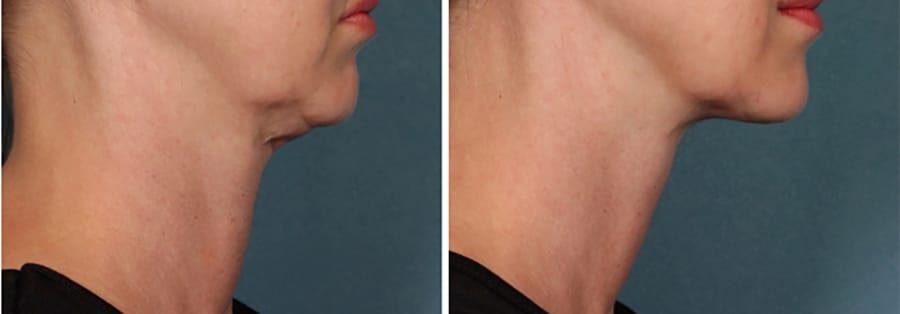female-before-after-kybella-injection-chin-fat-side