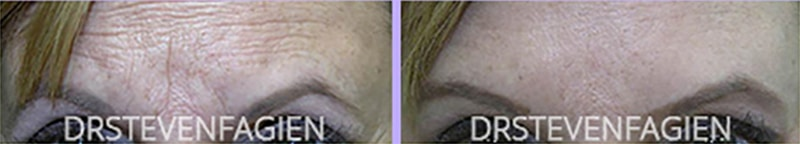 female-btx-juvederm-filler-inject-forehead-wrinkles