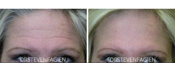 fillers-before-after-1
