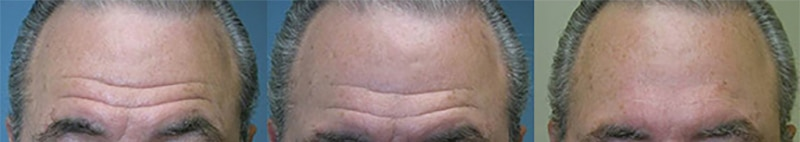 male-before-after-bleph-up-low-juvederm-filler-forehead-wrinkles
