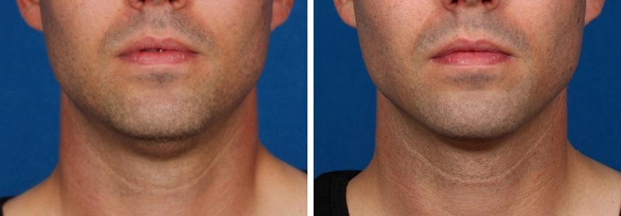 Chin / Jaw Procedures