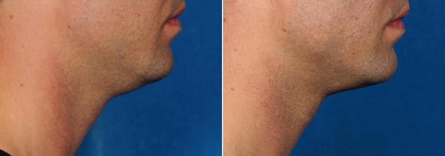 kybella-male-ba-side