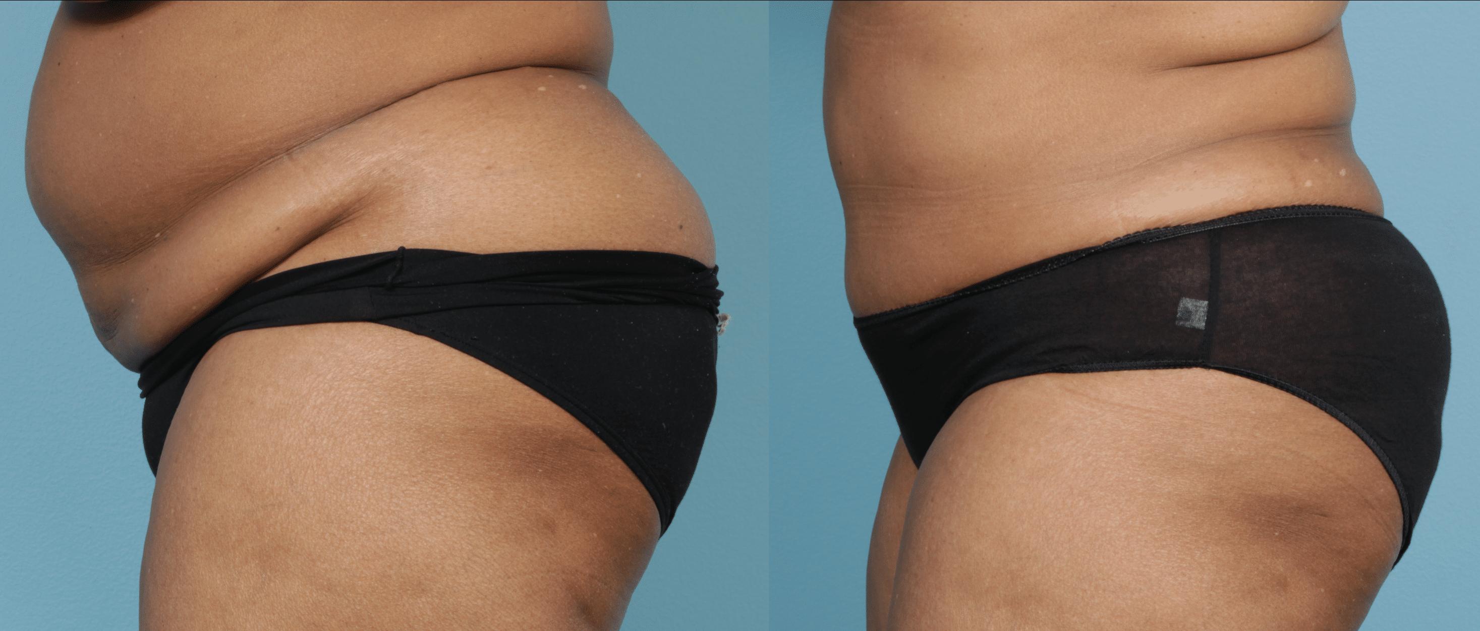 Abdominoplasty - Case 2 - 2
