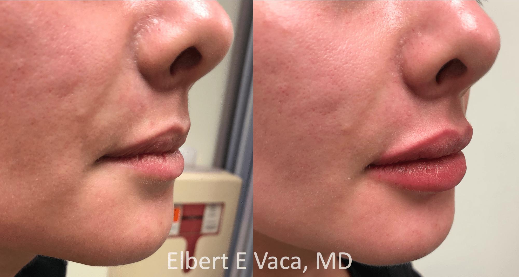 Filler – Case 3: Juvéderm Ultra Plus (lips)