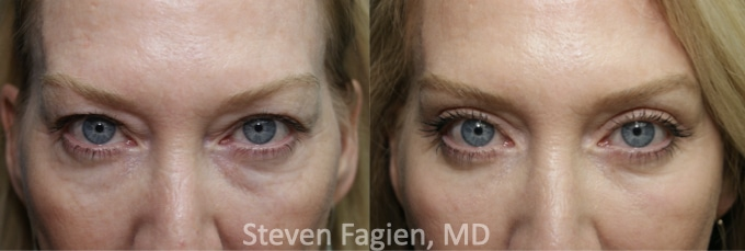 Case 1 - Upper and Lower Blepharoplasty with Lateral Canthoplasty