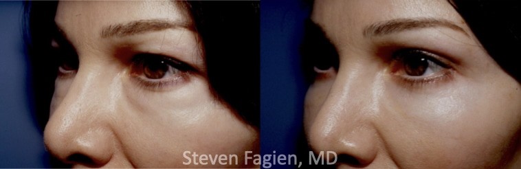 Case 2 - Upper and Lower Blepharoplasty with Lateral Canthoplasty