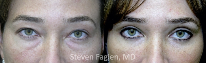 Case 3 - Upper and Lower Blepharoplasty with Lateral Canthoplasty