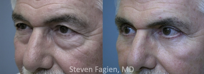 Case 4 - Upper and Lower Blepharoplasty with Lateral Canthoplasty
