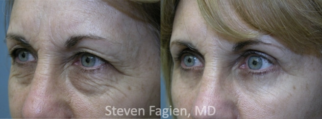 Case 5 - Upper and Lower Blepharoplasty with Lateral Canthoplasty