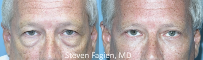 Case 6 - Upper and Lower Blepharoplasty with Lateral Canthoplasty