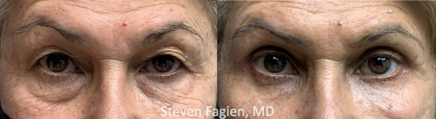 Case 7 - Upper and Lower Blepharoplasty with Lateral Canthoplasty