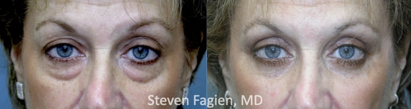 Case 8 - Upper and Lower Blepharoplasty with Lateral Canthoplasty